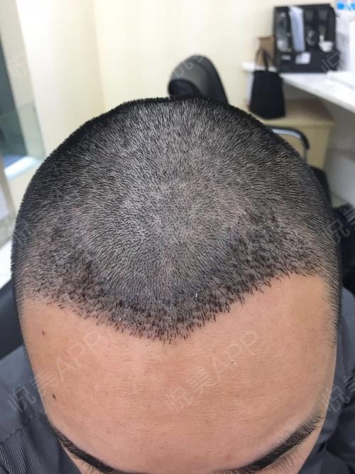 发际线种植术后5天_头发种植术后5天_面部毛发种植术后5天_治疗脱发术