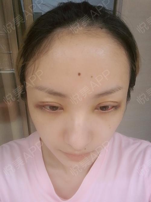 全切双眼皮术后5天_切眉提眉术后5天_眼型矫正术后5天_眼综合整形术后图片