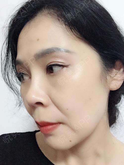 切眉提眉术后125天_外切去眼袋术后125天_眼周年轻化术后125天_去眼袋图片