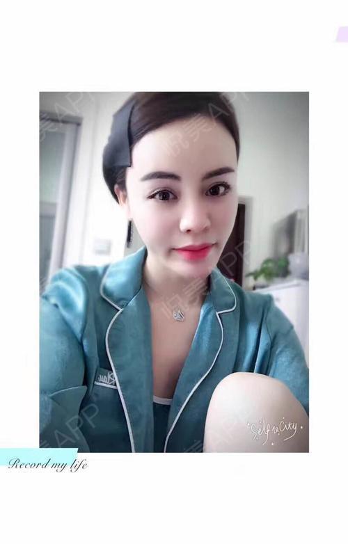 丽人在福州瘦脸做过朋友体贴后身边脂肪都夸我海峡针年前郑州填充打图片
