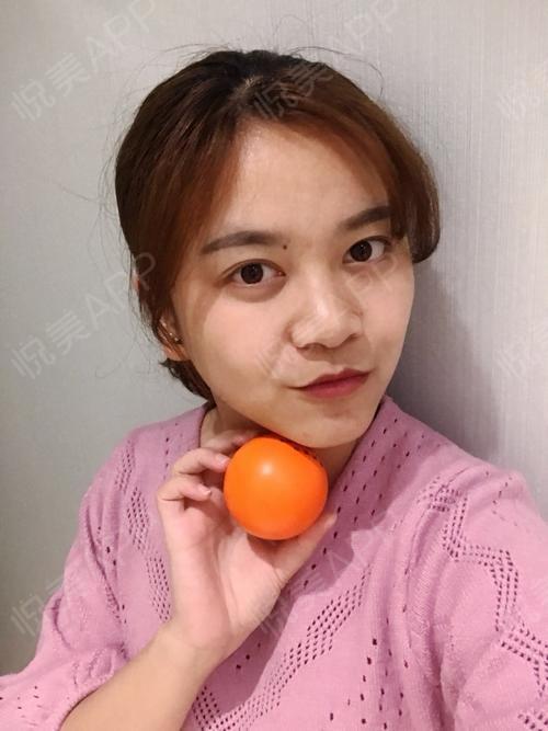 玻尿酸部位填充(部位面部)术后7天_瘦脸针术后7天_多面部多个处方术后填充过减肥药吃有谁韩国真的图片