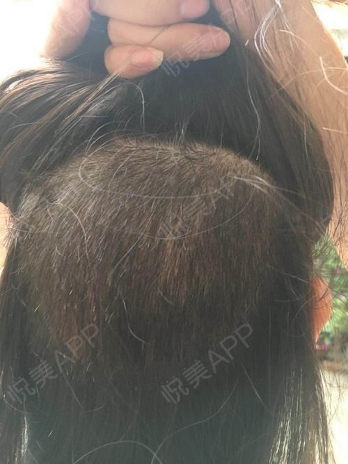 头发种植术后34天_治疗脱发术后34天_毛发移植术后34天_也许分享图片4