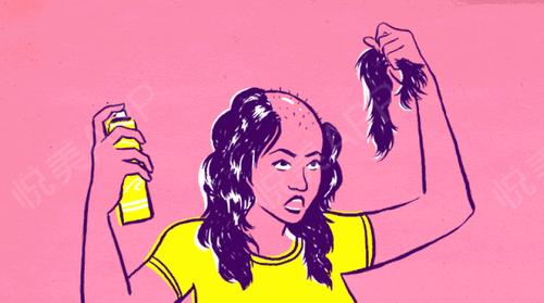 """竟然""""针""""可以这样治好脱发,仅需要三小时?"""