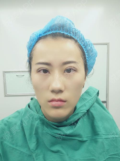 切眉提眉术后2天_全切双眼皮术后2天_眼周年轻化术后2天_眼综合术后2图片