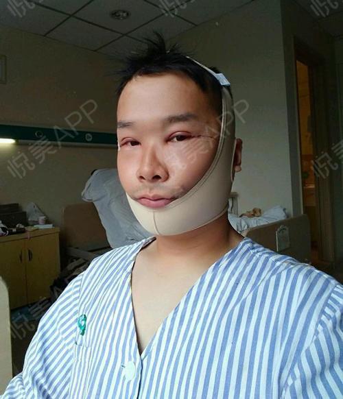 【上海华美李志海博士长曲线下颌角】目前还是住院的状态,因为手术