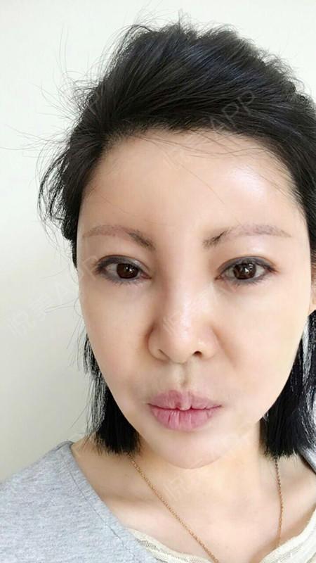 打完瘦脸针麻马上快一个月了,最期待的效果马减饼脂卖干吗北京同仁堂图片