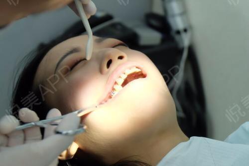 牙套宣传海报设计