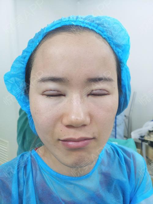 手术后装的假眼球图片_全切双眼皮术后1天_眼型矫正术后1天_眼综合术后1天_眼整形失败修复术