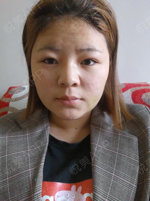 瘦脸吸脂术后7天_吸脂术后7天_面部术后7天_时间瘦脸术后7天_a人保小v瘦脸减脂多长效果有轮廓图片