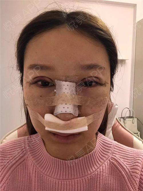 鼻综合手术_全切双眼皮手术当天_鼻综合手术当天_眼综合手术当天_隆鼻失败修复