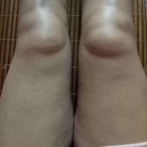 大腿无创环吸