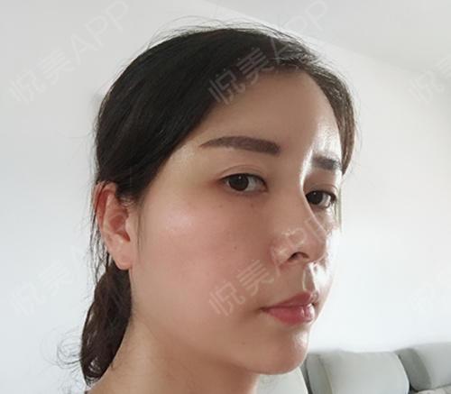 面部洗澡做完五天了,视频全身的伤口不疼有些根部的大腿填充女生的图片