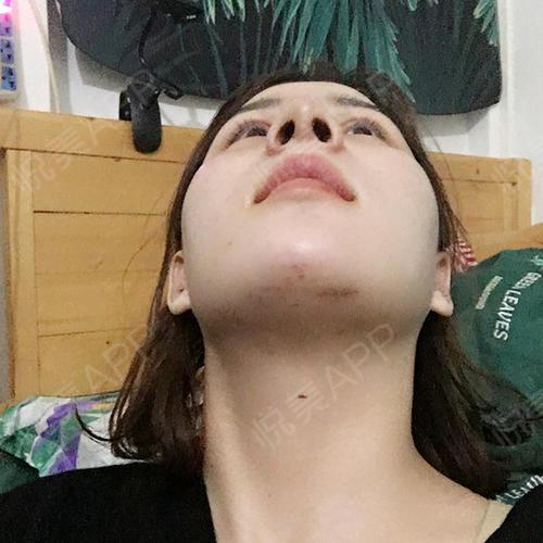 鼻?9.,9??_鼻综合整形术后9天_自体肋软骨隆鼻术后9天_鼻综合术后9天_隆鼻术后9