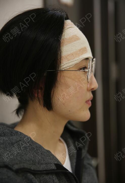 Galvos skausmas nuo sinusito