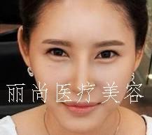隆鼻+韩式双眼皮+脂肪移植!变的像韩国明星一样
