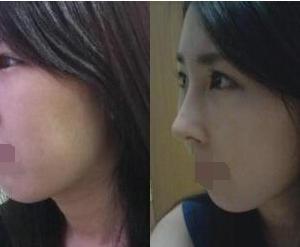 隆鼻+开眼角一个月之后的效果