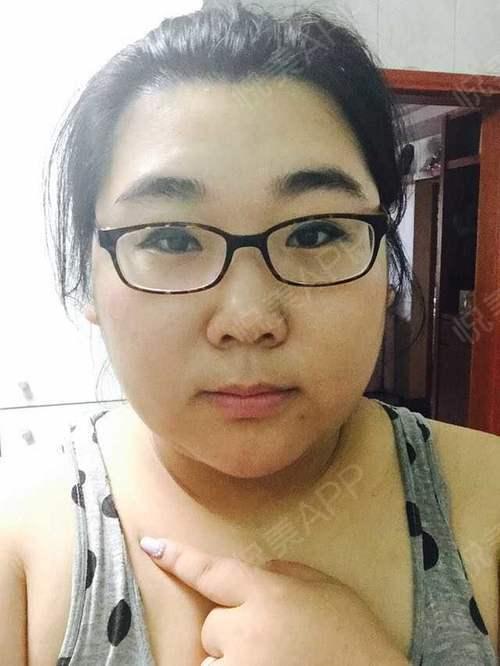 移走面部多余脂肪塑造小脸型,好神奇呢简单的跟大家分享一年我做了皮层光焊溶脂面部的经历。  我的面部整体来说就是胖,而且双...
