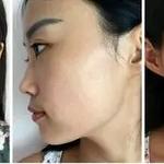 脸部的肌肤总是干干的 ,紧绷绷的上妆也不贴妆,感觉像是带了一层假面,去哈尔滨Dr.W做面部护理的时候,Dr.W的护肤医生...