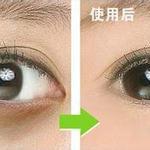 祛黑眼圈最有效的方法