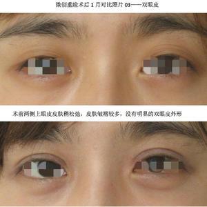 案例分享——双眼皮5