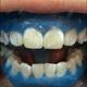 给大家分享我的冷光美白。我的牙齿一块白一块黄的,真心不好看。平时拍照从不露牙!一个原因是笑起来就会露...