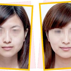 武汉广爱医院顾客瘦脸针案例对比图二