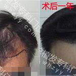 严重脱发怎么治疗?治疗脱发的最佳方法!
