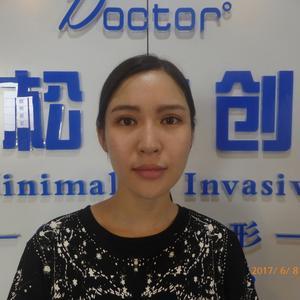 玻尿酸注射下巴  法令纹 鼻子
