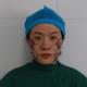 我是医院的一名工作人员,见证了太多的求美者的变化,很久之前就拜托赵主任也帮我修饰下脸型,赶上今天赵主...