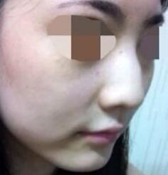 鼻部整形驼峰鼻