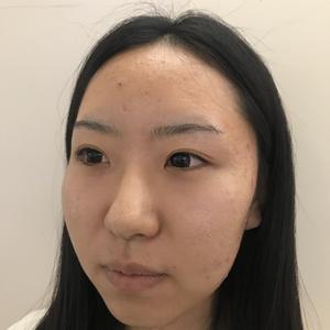 眼部修复术