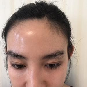 去健身房给大家来一小波皂片~发际线还是老样子,毛发很稳定的持续生长,看不出大脑门了,以前的秃顶也完全改善。