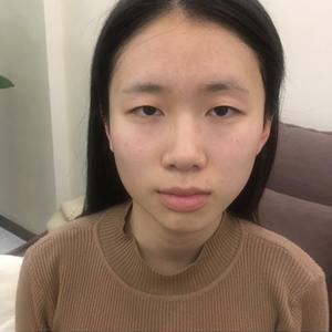 在青岛伊美尔割的双眼皮,记录一下喽