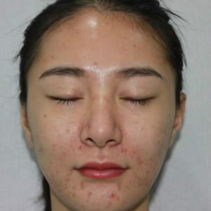 双眼皮修复+脂肪填充全脸+超声刀
