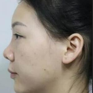 鼻综合隆鼻1个月