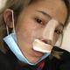 (重庆铂生·鼻综合)为自己的塌鼻子而毁了,所以就下定决心,找家好医院去把手术给做了。后来正好无意中在平台上看家这家医院的...