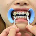 牙齒冷光美白