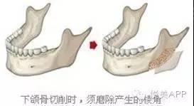 2018.1.03下颌角磨骨,给你从U到V的迷人小脸493.jpg