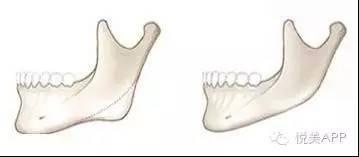 2018.1.03下颌角磨骨,给你从U到V的迷人小脸672.jpg