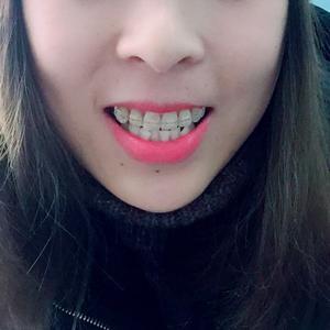@合肥华美-半隐形牙齿矫正