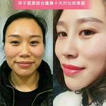 内江洋子医疗美容诊所的日记分享 术前图1