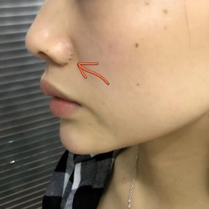 我的假体隆鼻
