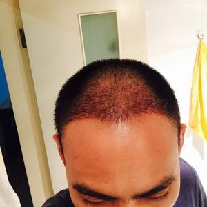 毛发种植 植发