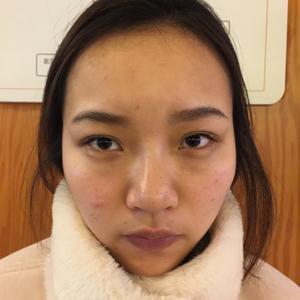 本来以为做鼻子会很疼,结果感觉很良好没什么难受的,医生说我的抗痛能力好哈哈,平时真没有发现自己这么厉害。我鼻子术前大家看...