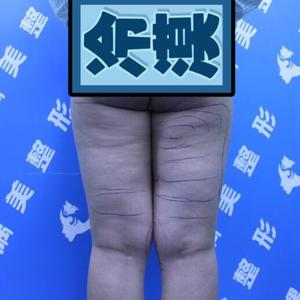 济南隅美大腿环吸颧弓吸脂自体脂肪填胸