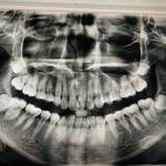 emmmmm~时间过得好快啊,戴牙套都快有1年了,现在已经感觉牙套完全融入了生活中,渐渐爱上了这种不知不觉的改变。还是希...