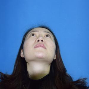 【18年感恩大回馈】硅胶隆鼻888