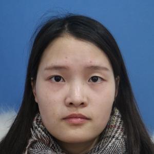 双眼皮手术恢复过程