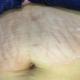 生完孩子的恢复后就发现自己有一些妊娠纹,虽然不是说非常的严重的,但是对于爱美的我来说 这显然是不能忍...