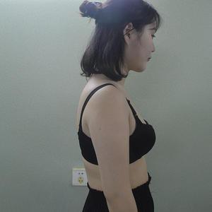 腋下后背吸脂